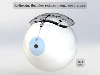 Capstone Project Profile: A Novel Implant for Regulating Excessive Eye Pressure in Glaucoma Patients